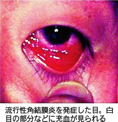 流行性角結膜炎を発症した目。白目の部分などに充血が見られる 流行性角結膜炎を発症した目。白目の部